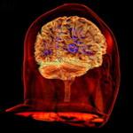 Человеческий мозг феноменален